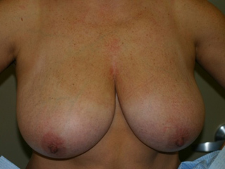 Sample patient before breast reduction surgery.