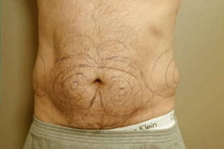 Front view of Aesthetic Surgery sample patient number 4 before liposuction of abdomen.