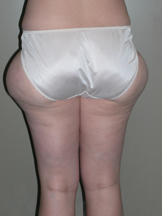 Rear view of Aesthetic Surgery patient before liposuction of outer thighs.